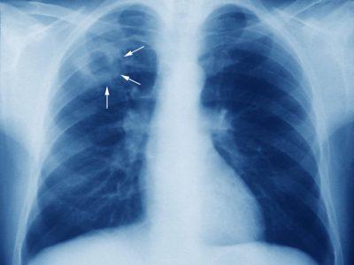 ¡Cuídate! De La Tuberculosis Aun Existe Y Esta Entre Nosotros.