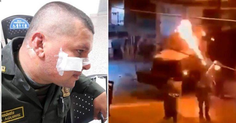 Recuperación De Intendente De La Policía Que Le Estalló Un Molotov En La Cara